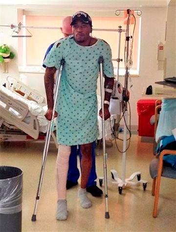 (AP Photo/University of Louisville,). In this photo released by the University of Louisville, basketball player Kevin Ware walks on crutches, Monday, April 1, 2013, in Louisville, Ky.